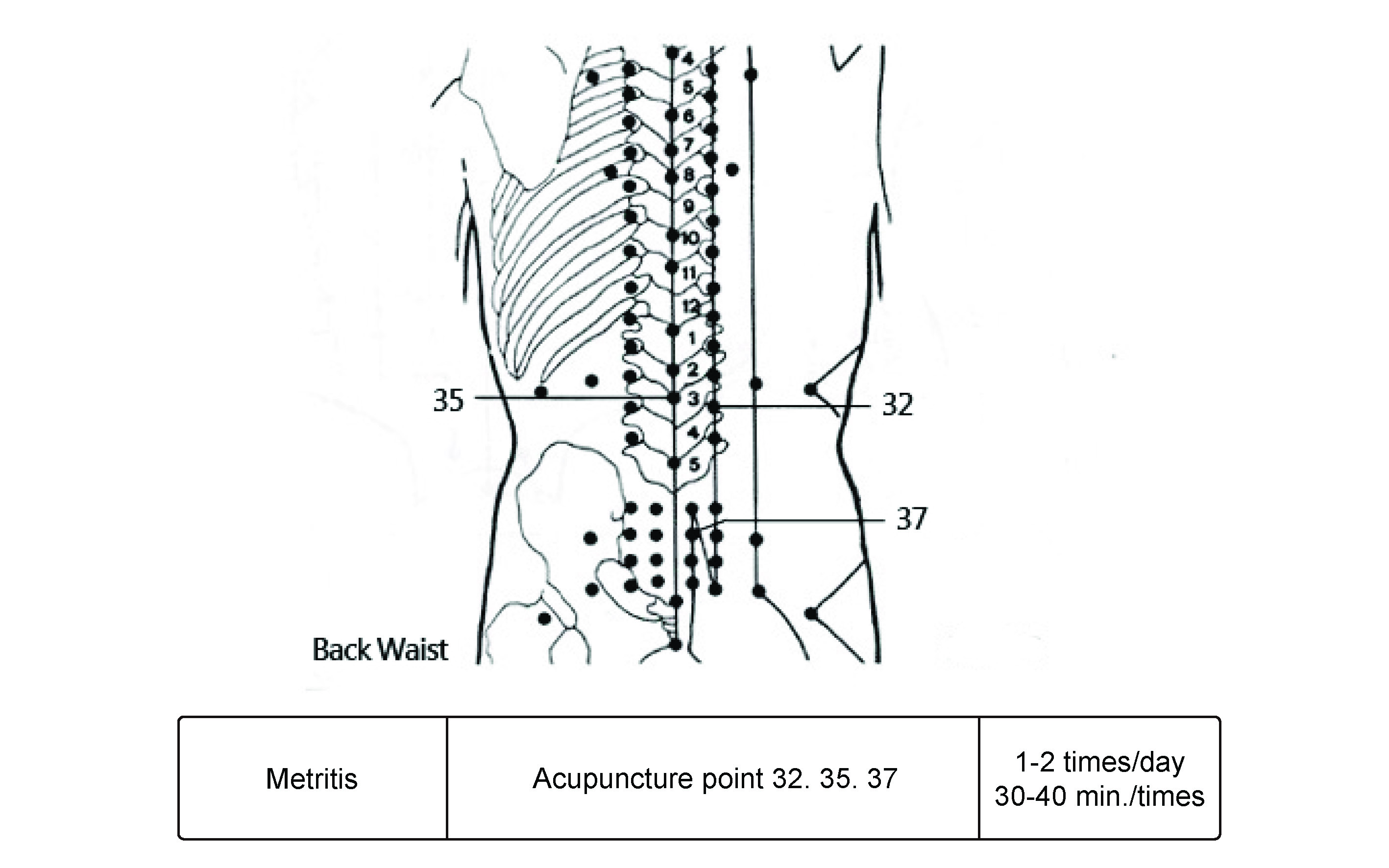 Muscle Tension Anxiety Relief Offered By Thermedic Drill Parts Diagram Wiring List For Model